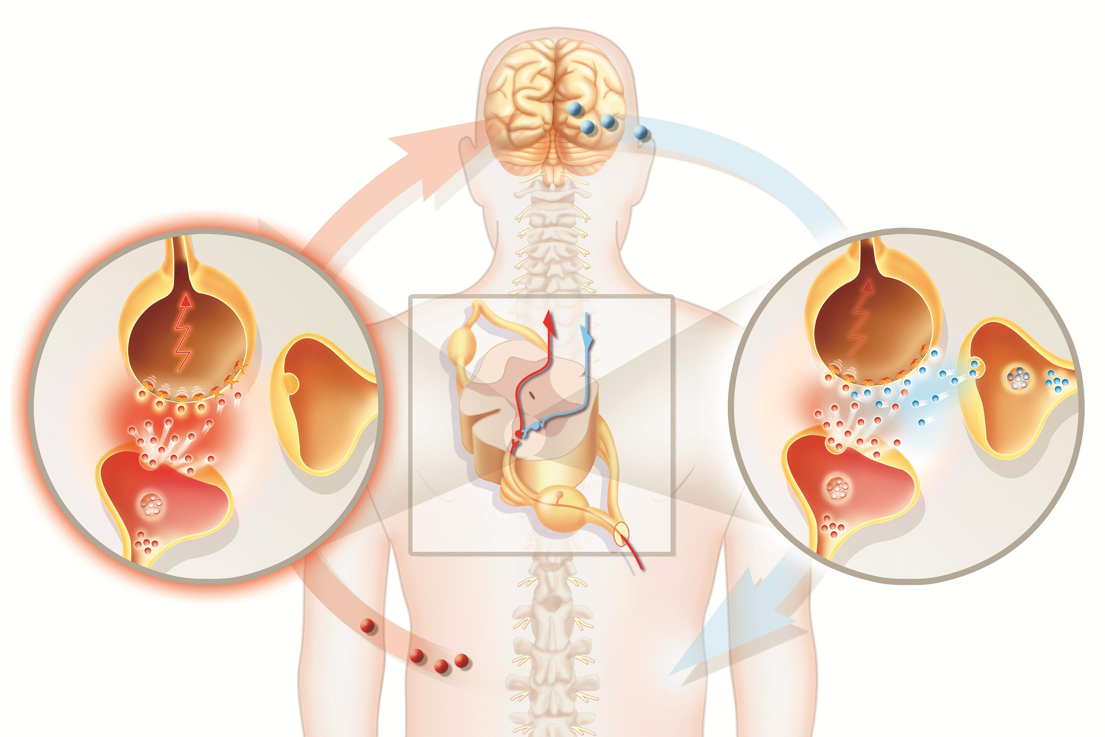 Gabapin benefit in Neuropathic